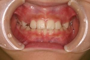 下の前歯がきれいにみえています