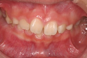咬んだときに下の歯がかくれいます