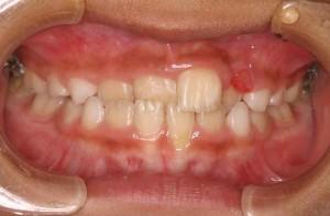 前歯3本のかみ合わせが反対になっています。